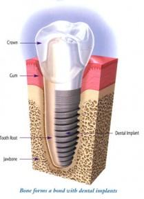 Restauration d'une dent par implant dentaire